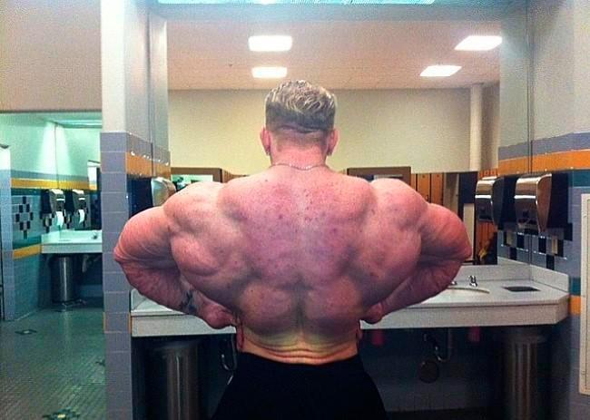 Стоит ли принимать стероиды при угрях станазолол кленбутерол